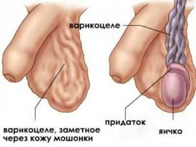 На фото: варикоцеле у мужчин