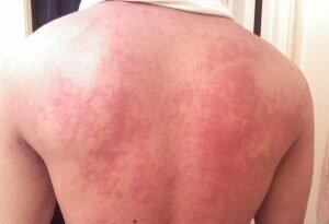 На фото: аллергия на препарат