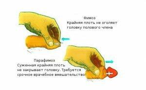 На фото: парафимоз как осложнение фимоза