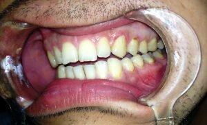 На фото: кариес - одна из причин простатита
