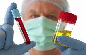 На фото: анализы крови и мочи