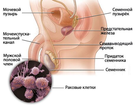 На фото: рак полового члена