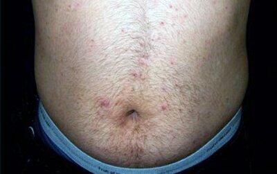 На фото: аллергическая сыпь на животе