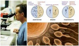 На фото: спермограмма