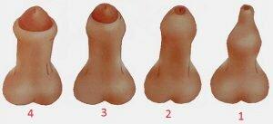 На фото: степени фимоза у мальчиков
