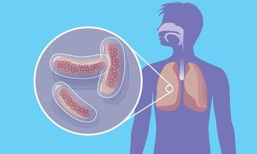 На фото: туберкулез