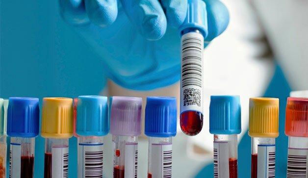 На фото: анализ крови на гормоны