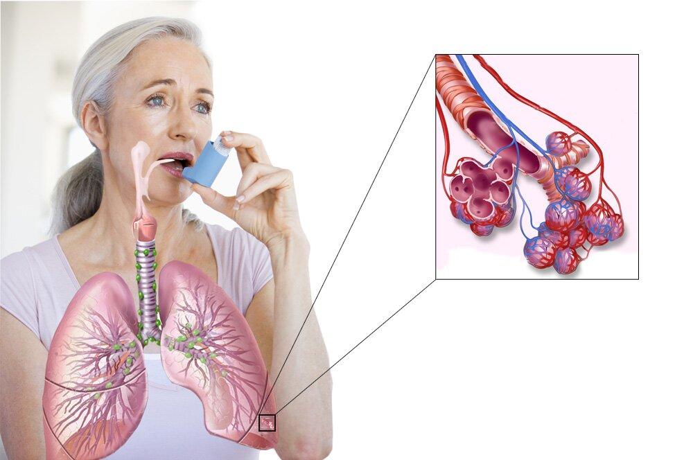 На фото: астма