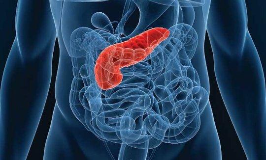 На фото: заболевания поджелудочной железы
