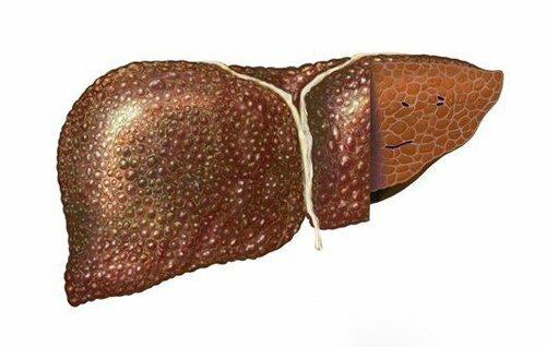 На фото: цирроз печени