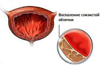 Инфекционный цистит симптомы причины лечение и профилактика