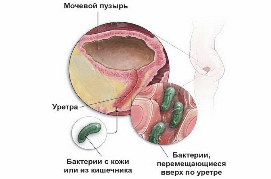 На фото: инфекционный цистит