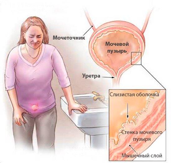 На фото: простуженный мочевой пузырь