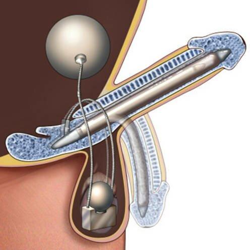 На фото: имплантат в половом члене