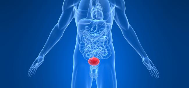 На фото: воспаление мочеполовой системы