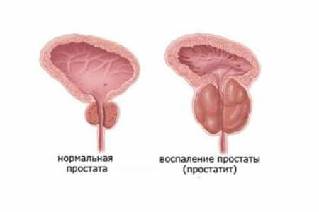 На фото: воспаление простаты